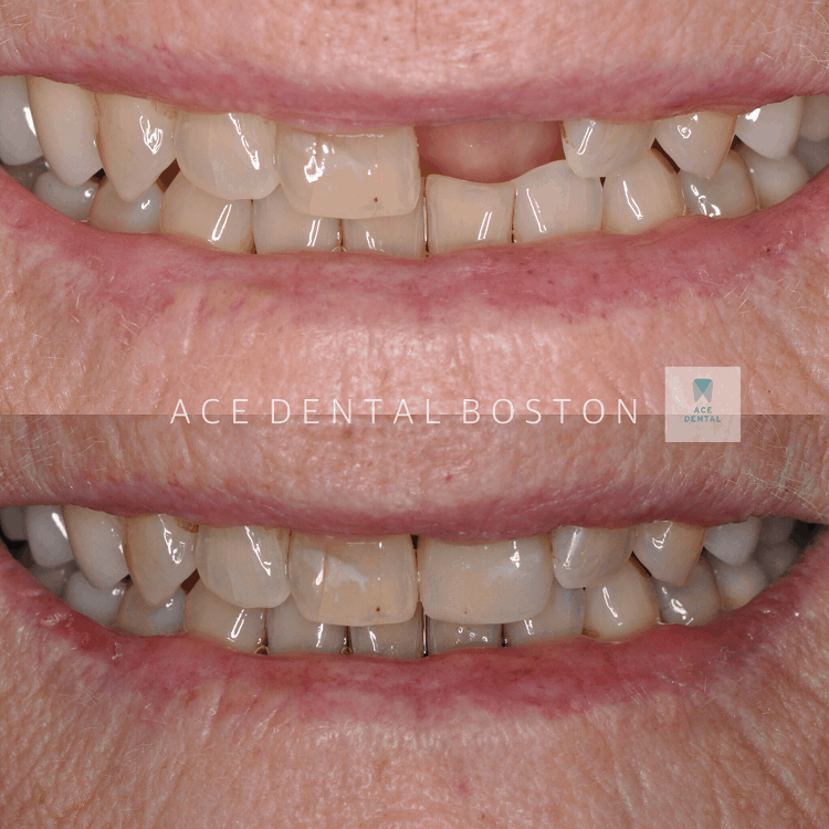 one set of teeth, with a missing tooth and a second set of teeth with the missing tooth replaced