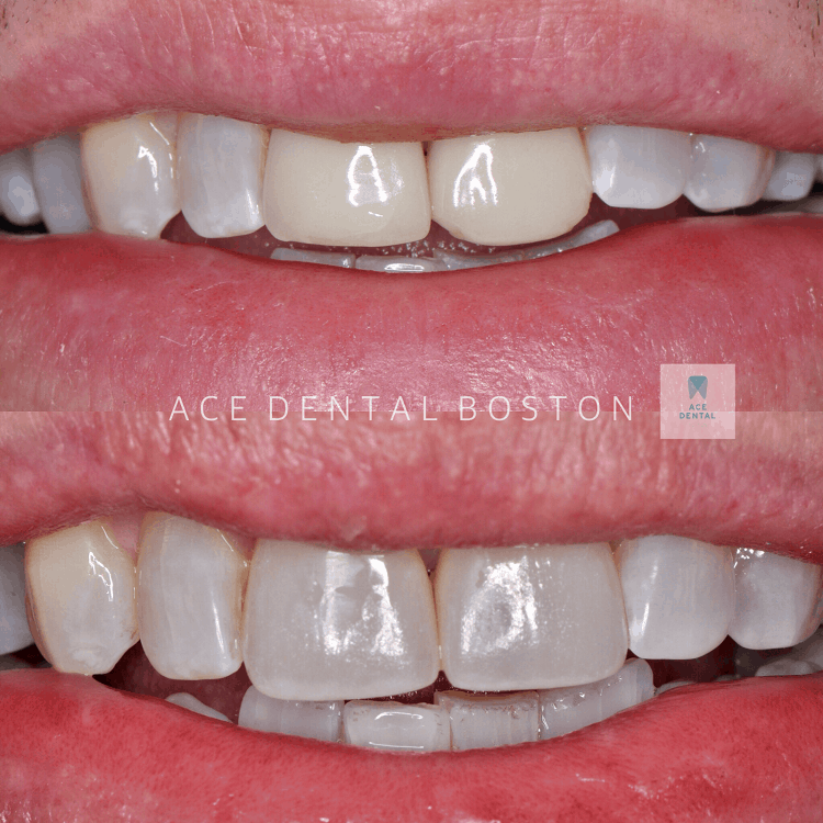 one set of brown, yellow, and crooked teeth and one set of teeth after cosmetic crowns are applied that are straight and whiter