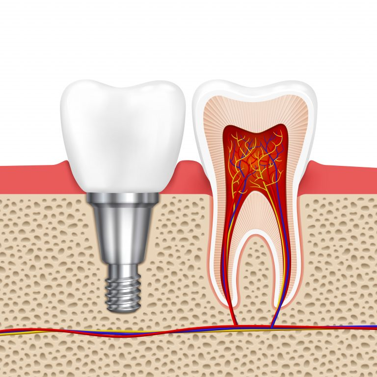 illustration depicting a dental implant and cross section of a tooth with inflamed roots requiring root canal
