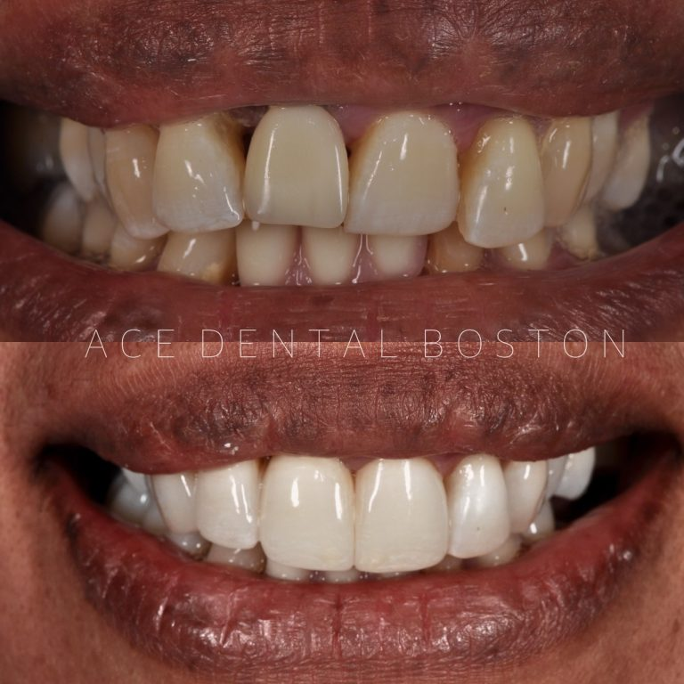 before and after photos of teeth whitening