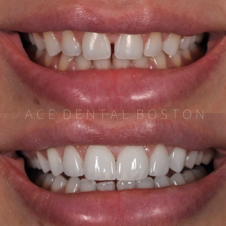 before and after photos of teeth without veneers and teeth with veneers