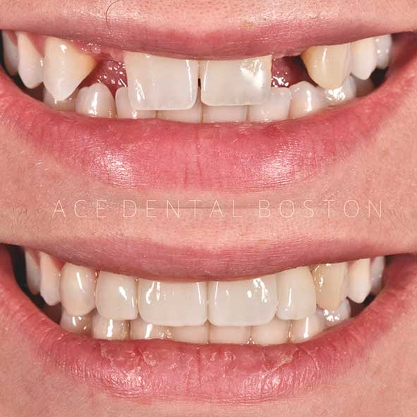 before and after of a person with missing teeth who received dental implants and veneers from Ace Dental Boston in Hyde Park